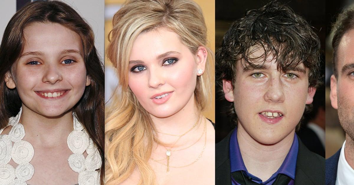 20 ugly celebrities