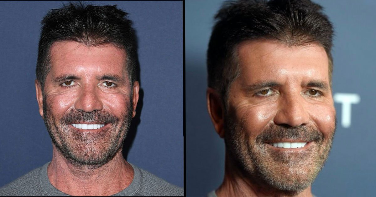 Simon Cowell Reveals Truth Behind His New Face 22 Words