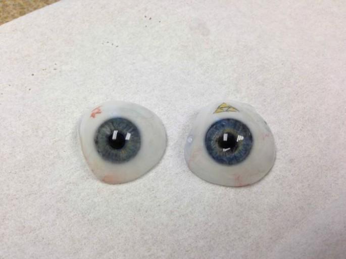 prosthetic eye - 06