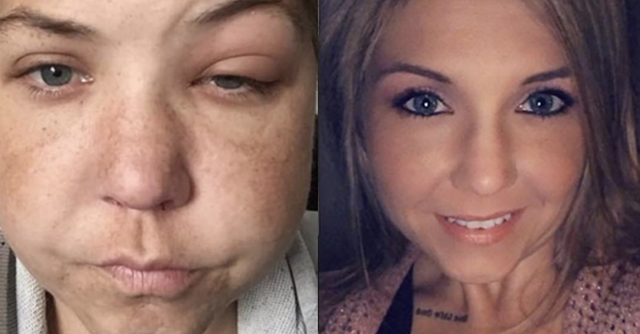 people share before and after photos after they quit drinking 22 words