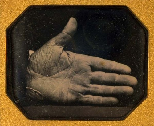 "Photo of a man's hand branded with ""SS"" for ""Slave Stealer"""