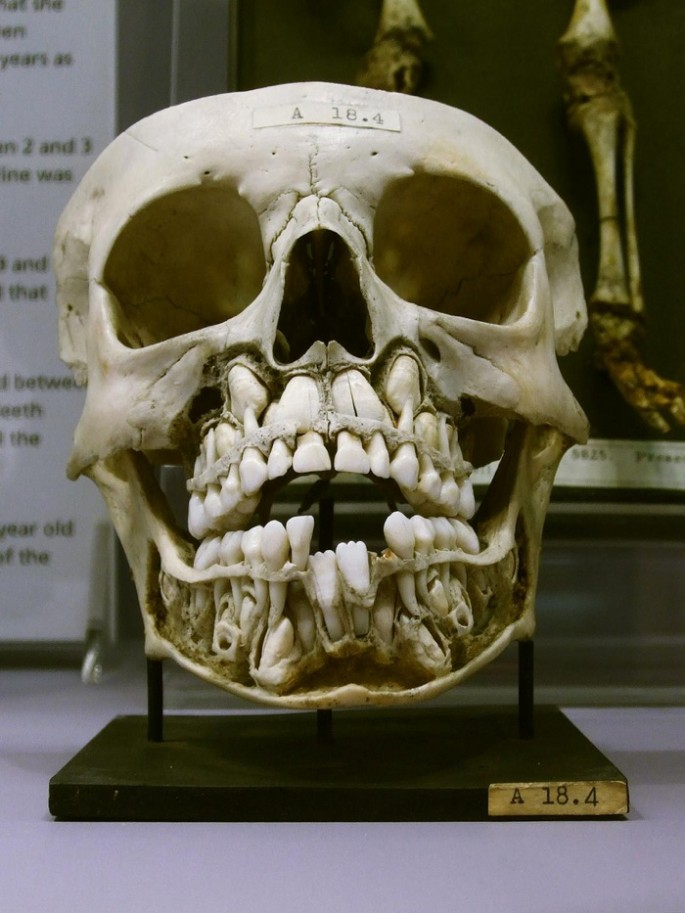 Skull with baby teeth