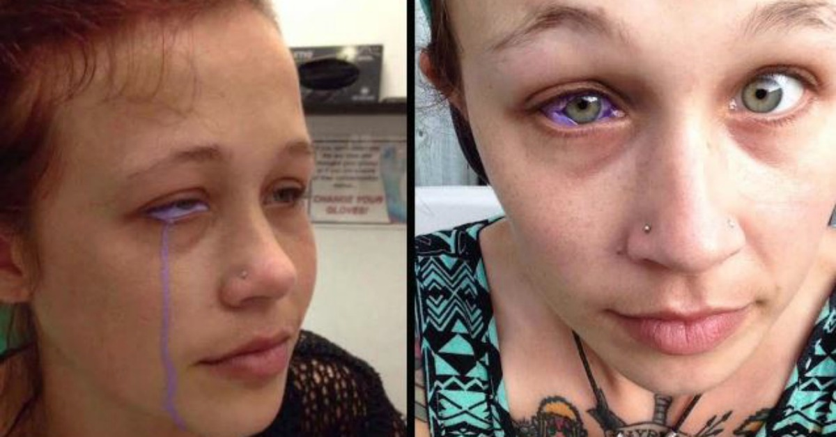 This Model Who Tried to Get an Eyeball Tattoo Made a Big Mistake