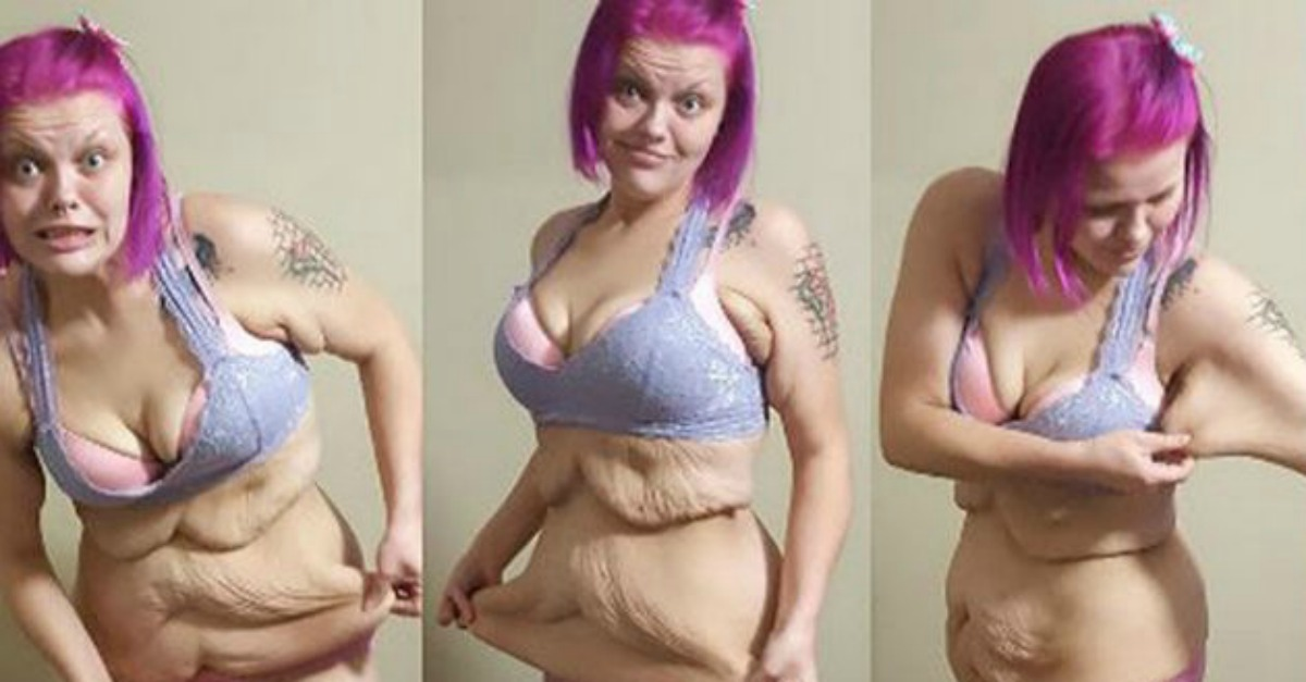 After Losing 186 Pounds, This Woman Now Deals With an 'Apron' of Excess Skin