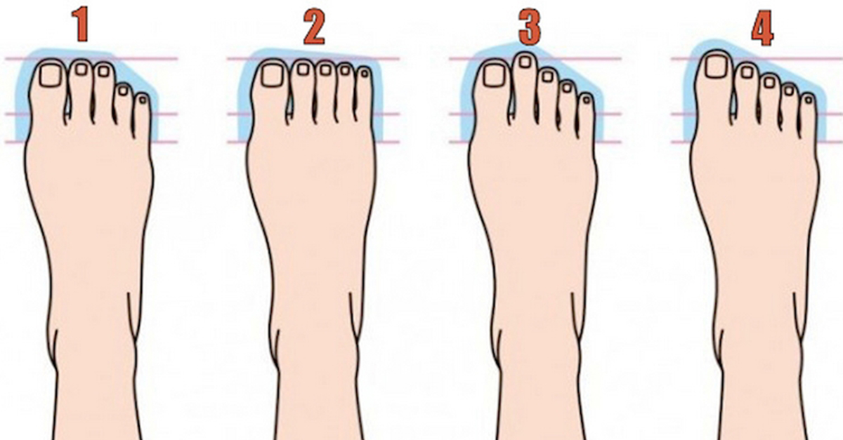 what foot type are you